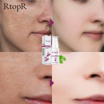 RtopR Glycyrrhiza Face Pore Repair Serum Collagen Face Anti Wrinkle Whitening Cream Oil Control Hydrating Effective Shrink Pores